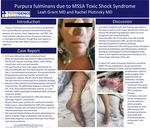 Purpura fulminans due to MSSA Toxic Shock Syndrome by Leah Grant and Rachel Plotinsky