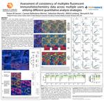 Assessment of consistency of multiplex fluorescent immunohistochemistry data across multiple users utilizing different quantitative analysis strategies